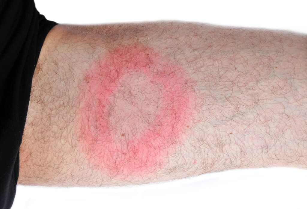 Erythema migrans (EM) rash prevelant in approximately 70% of Lyme Disease cases.